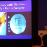Kyphoplasty & Vertebroplasty Talk (2)