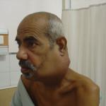 cancer-neck